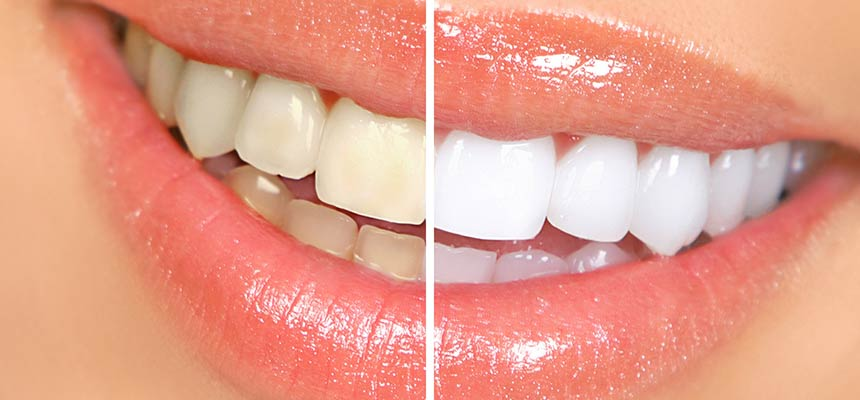 A before and after shot of a woman smiling